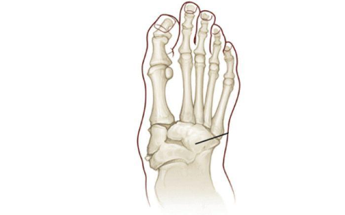 Image of Charcot Joint Disease Neuroarthropathy