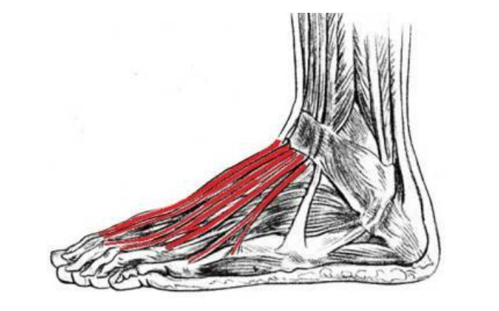 Image of Foot showing Extensor tendonitis , Socal foot Ankle Doctors, Extensor tendonitis