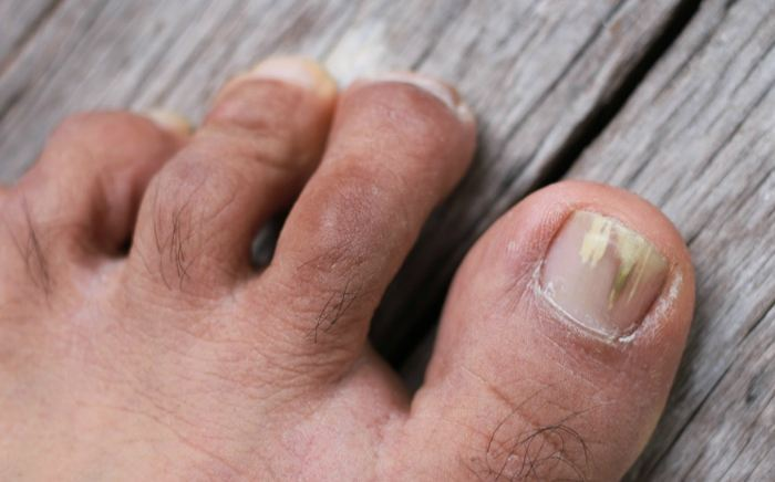 Image of Foot showing the condition of Fungal Toe Nails, Socal Foot Ankle Doctors, Common Foot & Ankle Disorders