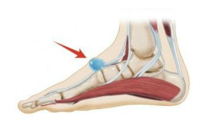 Image of Foot showing Ganglion cysts , Socal Foot Ankle Doctors, Ganglion cysts