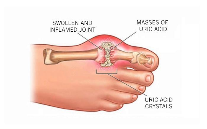 Image of Foot condition of Gout , Socal Foot Ankle Doctors, Gout | Gout Treatment