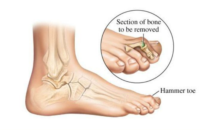 Image of Hammertoe, Socal Foot Ankle Doctors, Hammertoe Deformity
