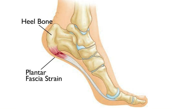 Image of Foot showing condition of heel spur, Socal Foot Ankle Doctors, Common Foot & Ankle Disorders