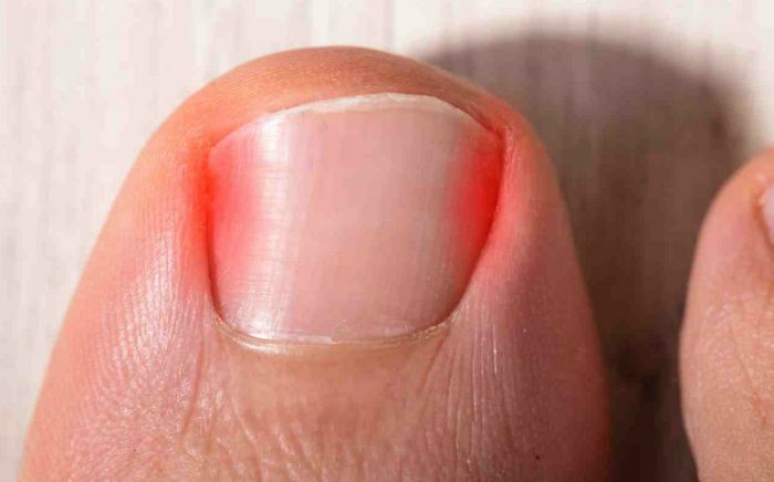 image of ingrown toe nails, Socal Foot Ankles Doctors, Common Foot & Ankle Disorders