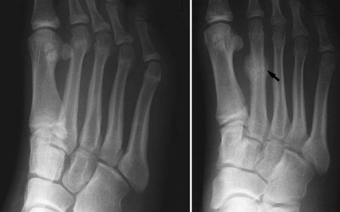 Image of Foot condition showing Metatarsal Stress Fractures, Socal foot Ankles Doctors, Metatarsal Stress Fractures