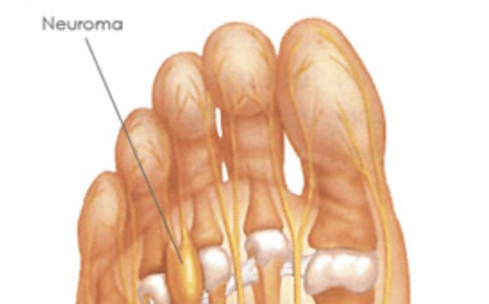 Image of a Foot showing the condition Neuroma, Socal Foot Ankle Doctors, Neuroma