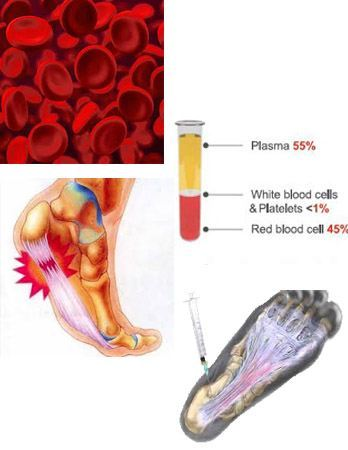 Image of treatment for Foot and Ankle Injuries, Socal foot Ankle Doctors, Heel pain treatment Los Angeles