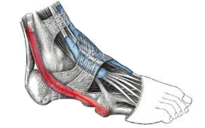 Image of foot showing Peroneal Tendonitis, Socal Foot Ankle Doctors, Peroneal Tendonitis