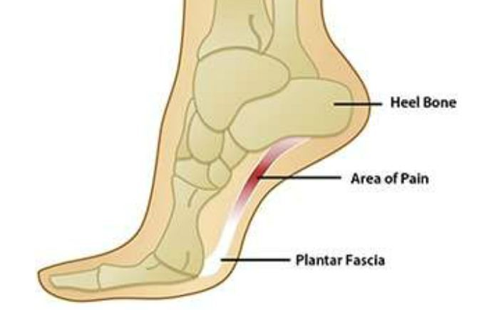 Image of Foot showing the condition for plantar fanciitis, Socal Foot Ankle Doctors, Foot & Ankle Treatments