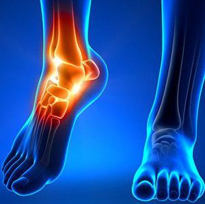 Image of Ankle Arthroplasty, Socal Foot Ankle Doctors, Ankle replacement