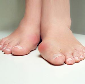 Image of Foot which requires bunion Surgery, Socal Foot Ankle Doctors, Foot & Ankle Treatments