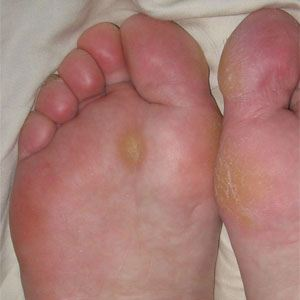 Image of Foot Showing the condition of Corn and Calluses, Socal Foot Ankle Doctors , Foot & Ankle Treatments