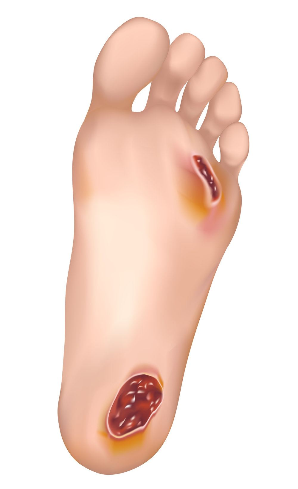 Image of advanced Wound Care, Socal Foot Ankle Doctors, Foot & Ankle Treatments