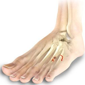 Image of Foot showing Foot Ankle fracture, Socal foot Ankle Doctors, Foot & Ankle Treatments