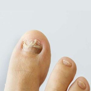 Image of Fungal nail Treatment, Socal Foot Ankle Doctors, Foot & Ankle Treatments