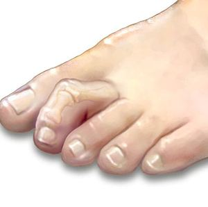 Image of hammertoe surgery,Socal Foot and Ankle Center