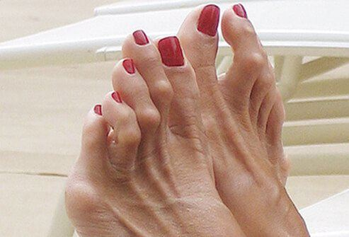 Image of Foot with Hammertoe, Socal Foot Ankle Doctors, Hammertoe treatment Los Angeles