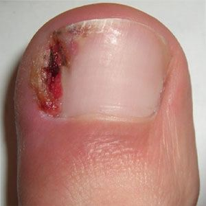 Image of Ingrown toe nail, Socal Foot Ankle Doctors, Foot & Ankle Treatments