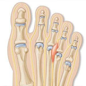 Image of Foot showing neuroma treatment, Socal Foot Ankle Doctors, Foot & Ankle Treatments