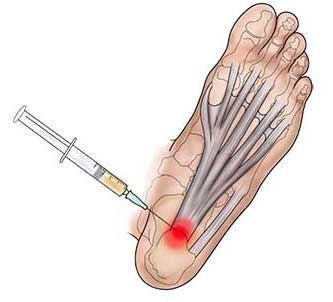Image of Foot treated with PRP injection, Socal foot Ankle Doctors, Heel pain treatment Los Angeles