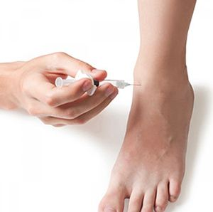 Image of treating Foot with PRP injections, Soca Foot Ankle Doctors, Foot & Ankle Treatments