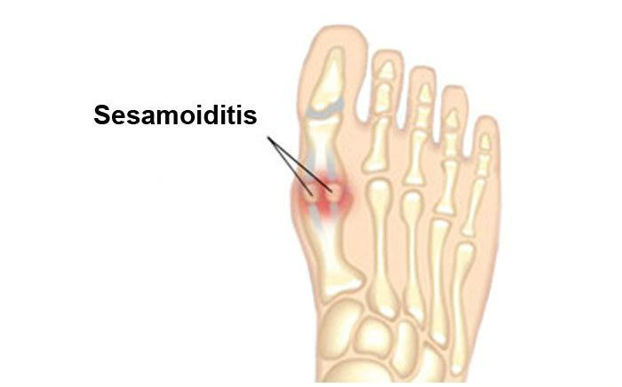 Image of Sesamoiditis Foot Condition, Socal Foot Ankle Doctors, Sesamoiditis Condition