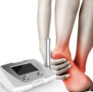 Image of Shockwave therapy,Socal Foot Ankle Doctors, Shockwave therapy Los Angeles