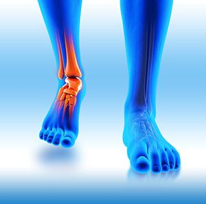 Image of Showing Stem Cell therapy, Plantar Fasciitis treatment in Los Angeles