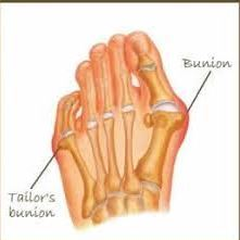 Image of Foot showing the condition for Tailors bunion, Socal Foot Ankle Doctors, Tailors Bunion