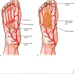 Image of Foot showing vascular testing, Socal Foot Ankle doctors, Foot & Ankle Treatments