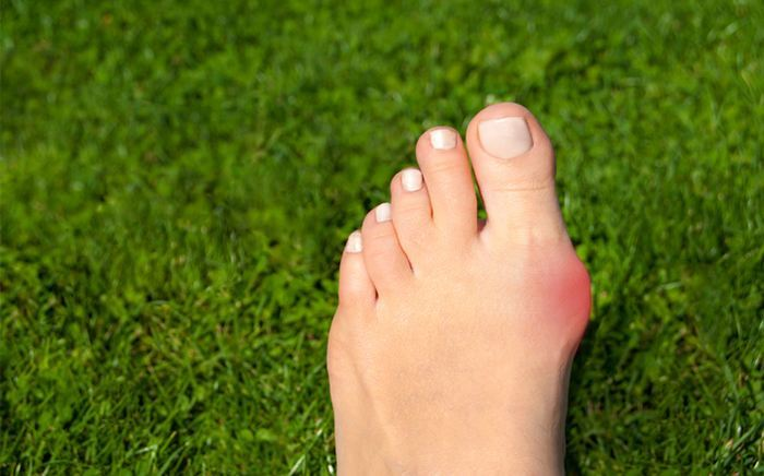 Image of Foot with Bunion condition, Socal Foot Ankles Doctors, Common Foot & Ankle Disorders