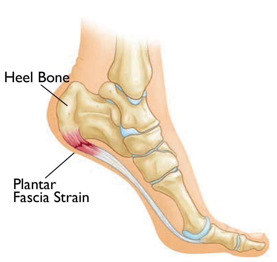 Image of Foot Heel pain treatment , Socal Foot Ankle Doctors, Heel pain treatment Los Angeles
