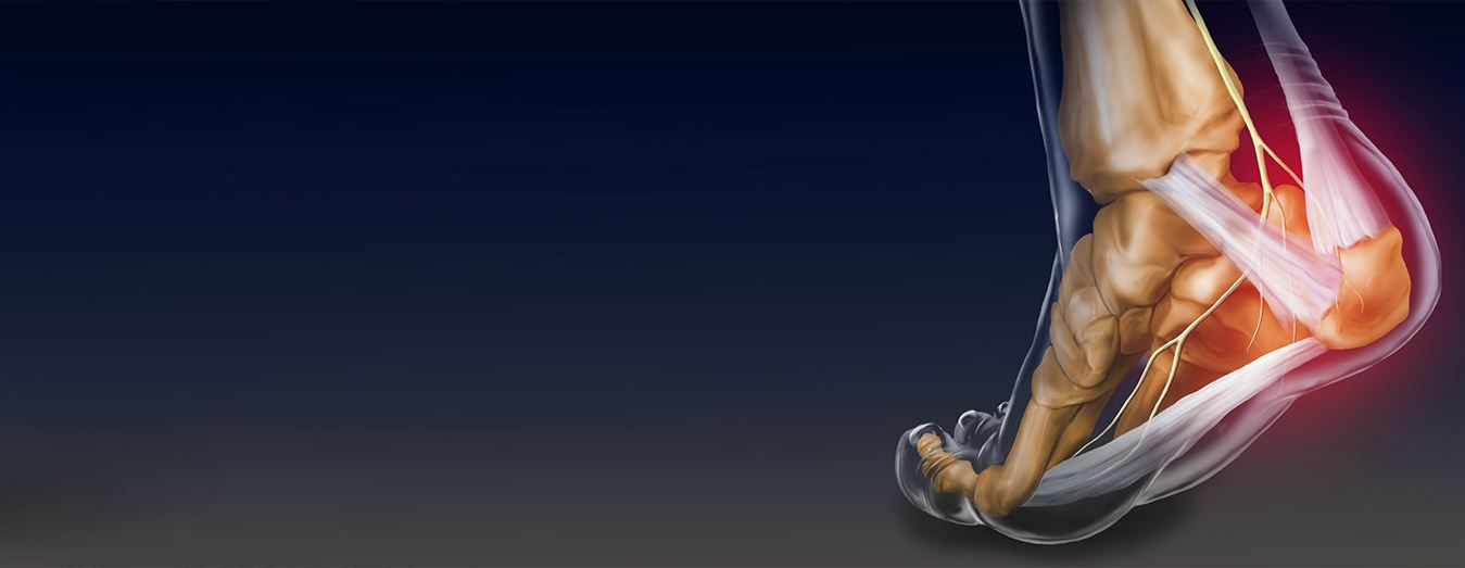 Image of Foot & Ankle surgery , Socal Foot Ankle doctors, Foot & Ankle Treatments