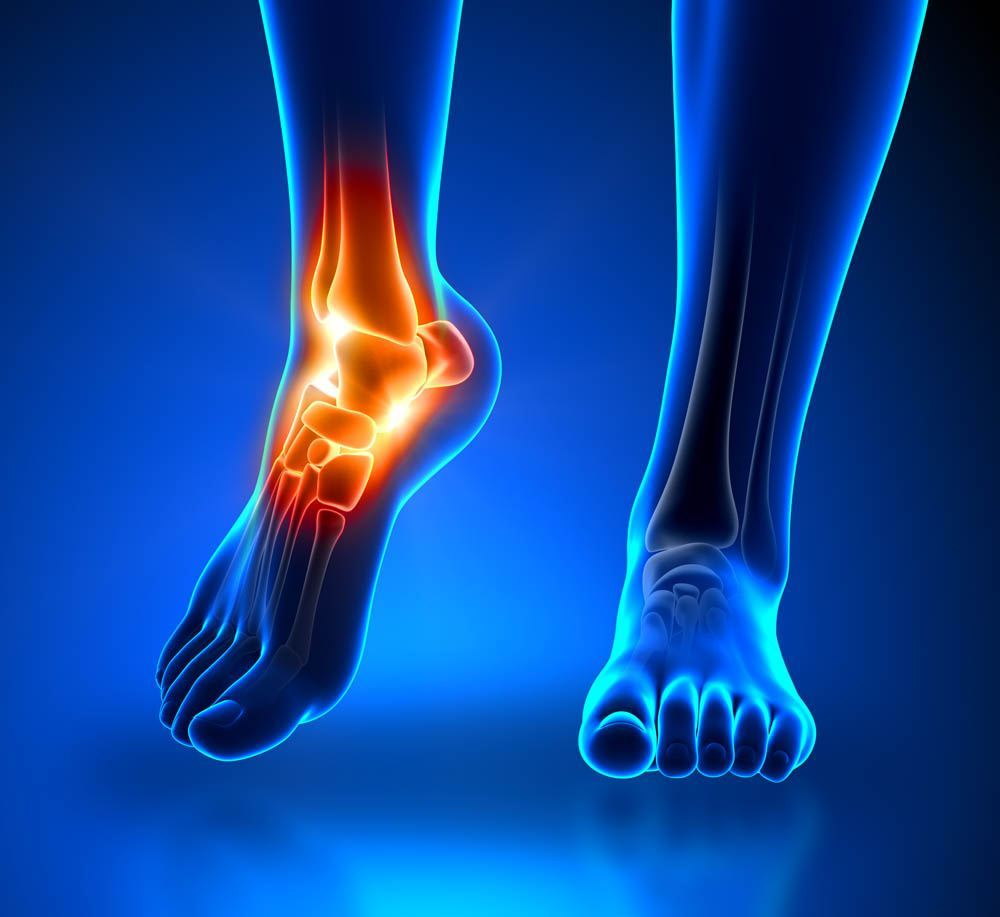 Image of Foot condition requires Ankle Arthroplasty, Socal foot Ankle Doctors,Podiatrist Los Angeles