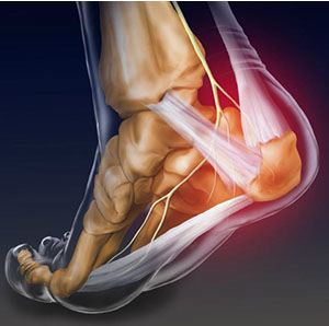 Image of Foot required Foot Ankle Surgery, Socal Foot Ankle Doctors, Foot & Ankle Treatments