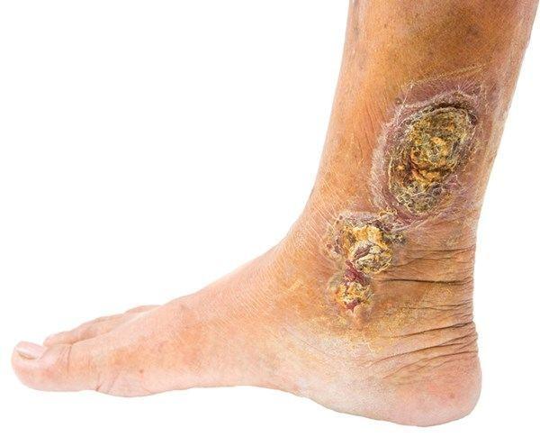 Image of a diabetic Foot, Socal Foot Ankle Doctors, Diabetic foot care Los Angeles