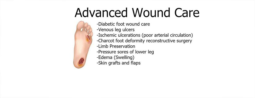 Image of Wound in the Foot, Socal Foot Ankle Doctors, Podiatrist Los Angeles