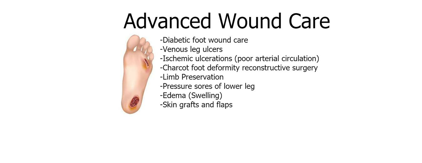 Image of Advanced Wound Care, Socal Foot Ankle Doctors, Diabetic foot care Los Angeles