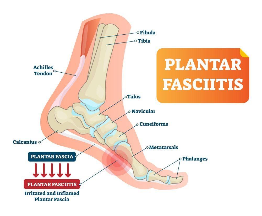 Image of showing Plantar Fasciitis Treatment, Socal Foot Ankle Doctors, Plantar Fasciitis Treatment Los Angeles
